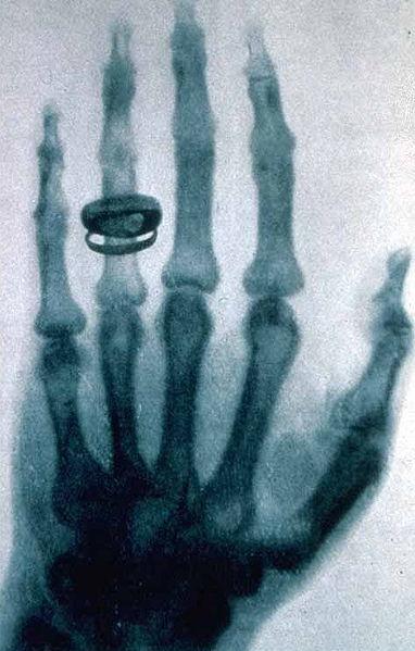 382px-X-ray_by_Wilhelm_Rntgen_of_Albert_von_Kllikers_hand_-_18960123-02