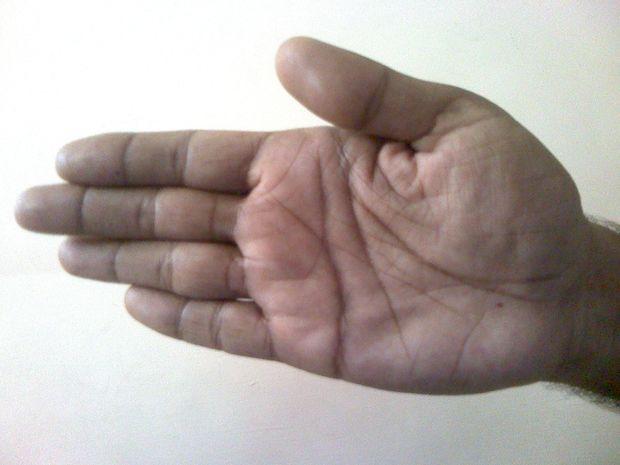 Χειρομαντεία: Οι Φάλαγγες και τα Σημάδια της Τύχης