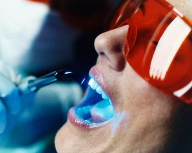 Πόσο βλαβερή είναι η λεύκανση των δοντιών;