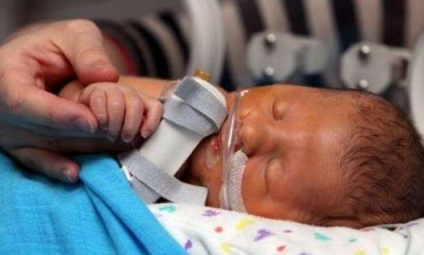Το μωρό που έχει κάνει τους γιατρούς να σκίσουν τα διπλώματά τους