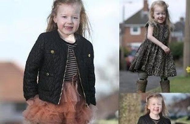 Συγκινητικό: Το κοριτσάκι με τα πόδια βατράχου περπάτησε για πρώτη φορά!