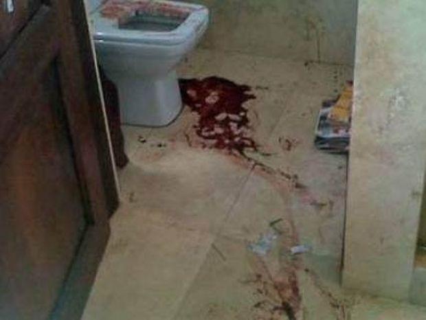 Εικόνες-ΣΟΚ: Το αιματοβαμμένο μπάνιο του Όκαρ Πιστόριους