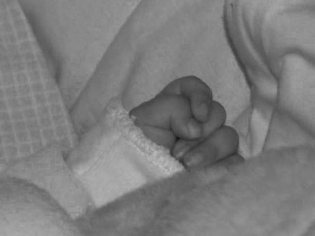 Αγοράκι γεννήθηκε με τέσσερα πόδια! (pic)