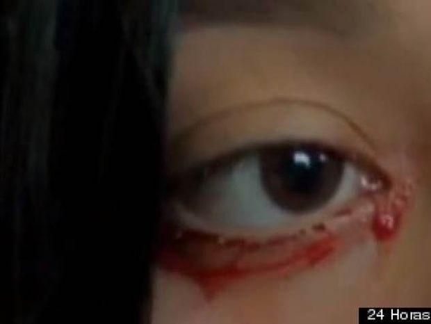 ΣΟΚΑΡΙΣΤΙΚΟ VIDEO: 20χρονη κοπέλα όταν κλαίει αντί για δάκρυα βγάζει αίμα
