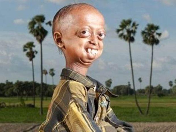 Η ιστορία ενός 14χρονου που ζει στο σώμα ανθρώπου 110 ετών (pics)