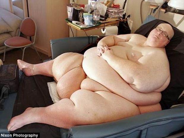 Απίστευτες φωτογραφίες: Έχασε 285 κιλά! Δείτε πως έγινε
