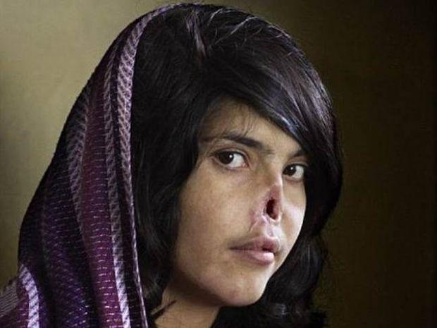 Δείτε πως είναι σήμερα η Αφγανή από το εξώφυλλο του TIME