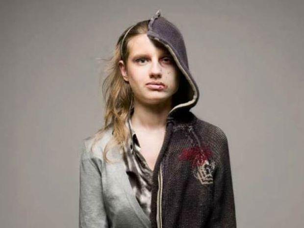 Σοκαριστικές φωτογραφίες: το πριν και μετά των ναρκωτικών