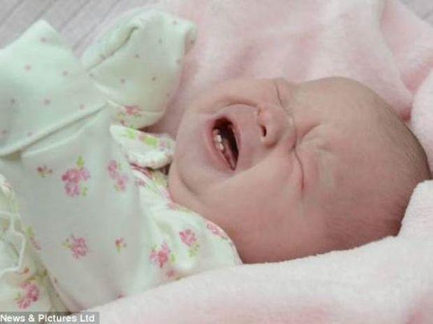 Μωρό γεννήθηκε με τα δύο μπροστινά του δόντια (pics)