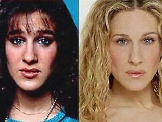 Απίστευτες μεταμορφώσεις:11 διάσημοι πριν και μετά την πλαστική (pics)