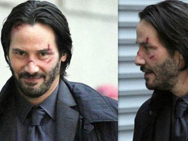 Με ράμματα, σπασμένη μύτη και τραύματα στο πρόσωπο ο Keanu Reeves!