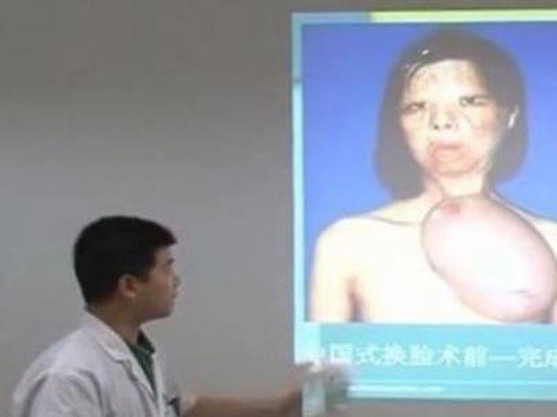 Κίνα: Δημιούργησαν νέο πρόσωπο στο στήθος 17χρονης