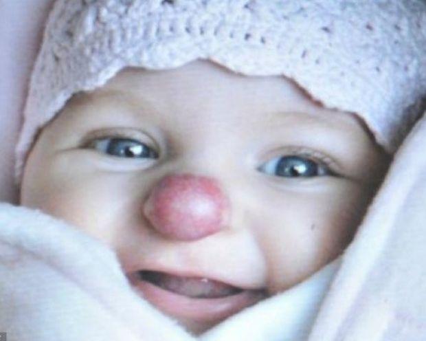 Κοριτσάκι γεννήθηκε με φωτεινό κόκκινο σημάδι στη μύτη