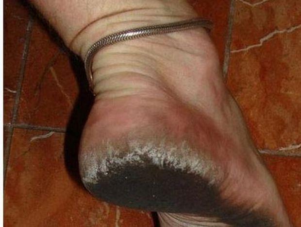 ΔΕΙΤΕ: Έχει να φορέσει παπούτσια 8 χρόνια