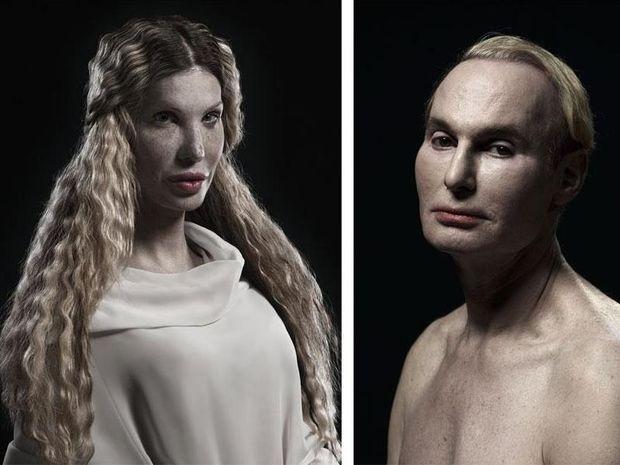 Φρικιαστικά πορτραίτα ανθρώπων που έχουν κάνει πλαστικές (pics)