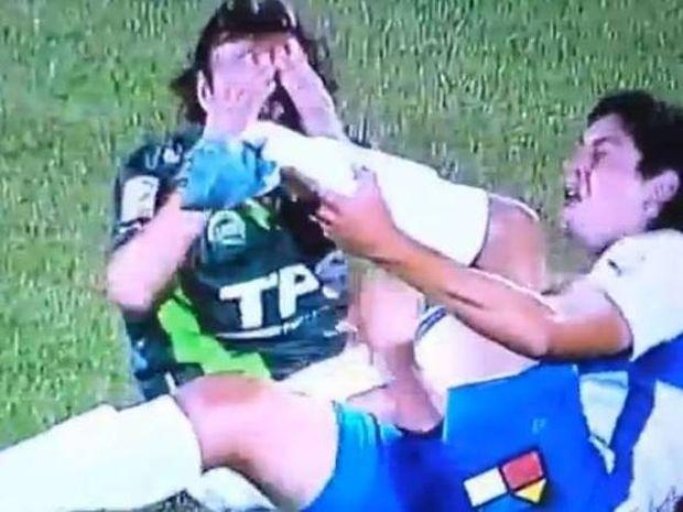 Τραυματισμός-σοκ στη Χιλή (video)