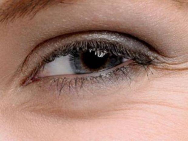 Γιατί δημιουργούνται οι «σακούλες» κάτω από τα μάτια