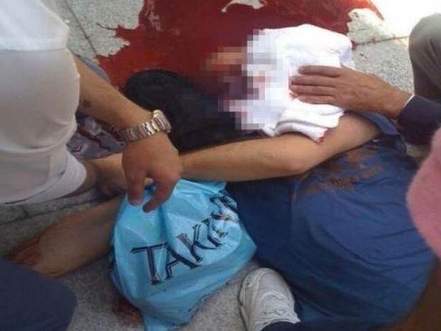 ΦΡΙΚΗ: Πυροβόλησαν διαδηλωτή στο κεφάλι – Η στιγμή της επίθεσης (vids)