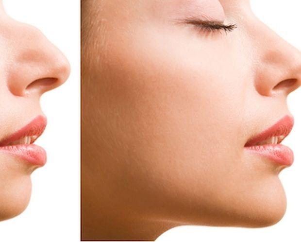 Δες πώς θα είναι η μύτη σου αν κάνεις πλαστική!