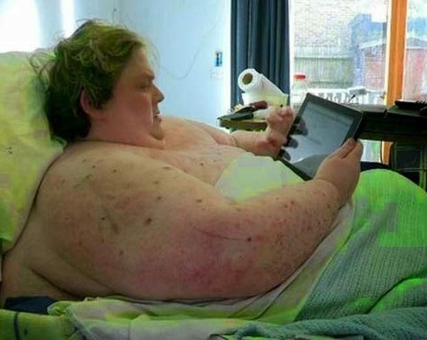 Εικόνες που προκαλούν σοκ! Δείτε πως είναι οι ακτινογραφίες ενός ανθρώπου 445 κιλών