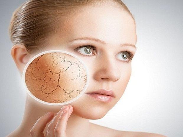 3 τρόποι για να απαλύνετε το ξηρό δέρμα