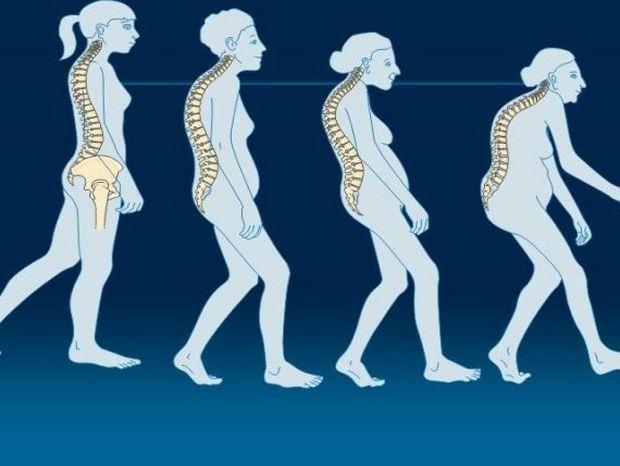 Ποιες τροφές εμποδίζουν την εμφάνιση της οστεοπόρωσης