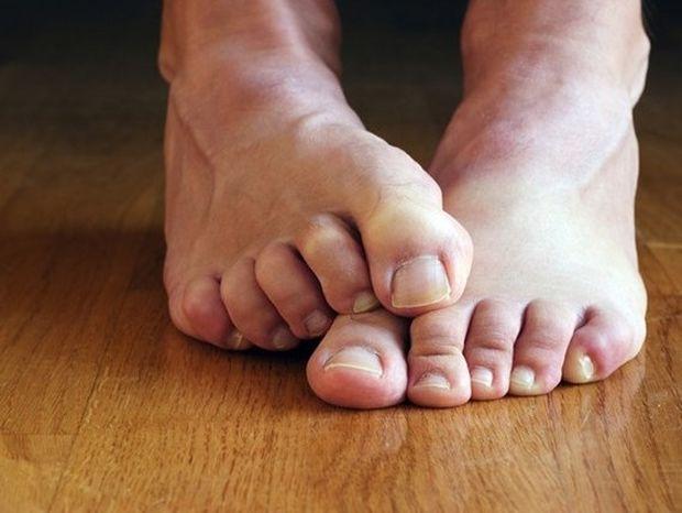 Πώς να αντιμετωπίσεις την κακοσμία των ποδιών