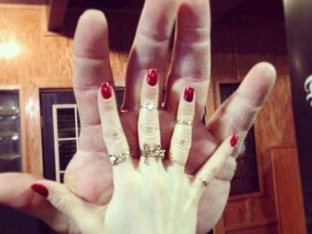 Ο άντρας με τα μεγαλύτερα χέρια στον κόσμο! Το μέγεθός τους είναι εντυπωσιακό!