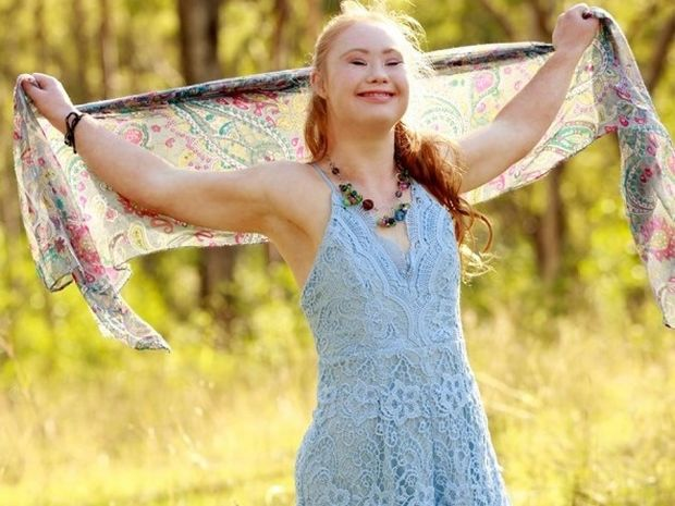 Η κοπέλα με σύνδρομο Down ονειρευόταν να γίνει μοντέλο και τελικά τα κατάφερε!