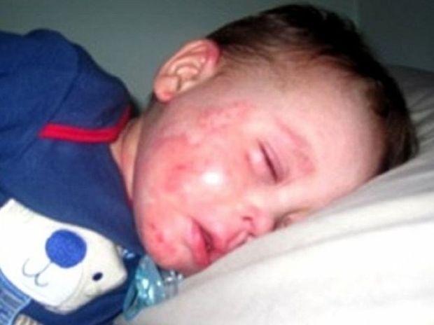 «Μανούλα, άσε με να πεθάνω» - Η ιστορία του 5χρονου Μόργκαν που συγκλονίζει