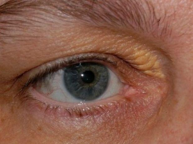 Ξανθέλασμα: Όταν η χοληστερίνη φαίνεται στα μάτια