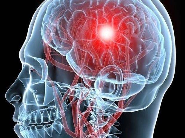 Ανεύρυσμα εγκεφάλου: Συμπτώματα, θεραπεία, αποκατάσταση