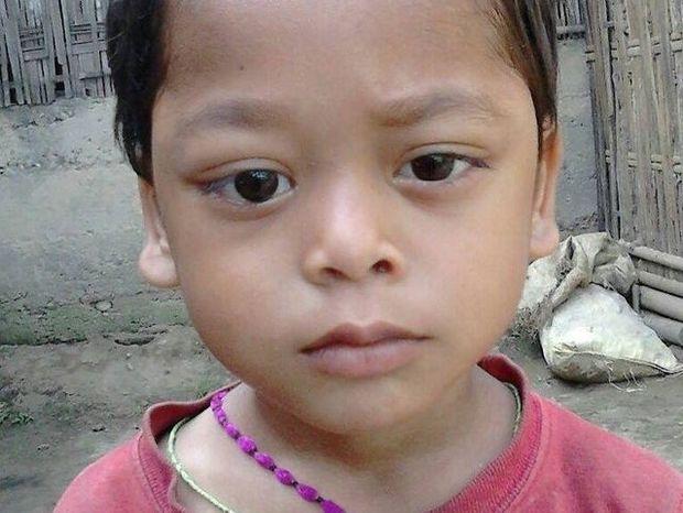 Ινδία: Το αγόρι με τα μάτια που αιμορραγούν – Σκληρές εικόνες