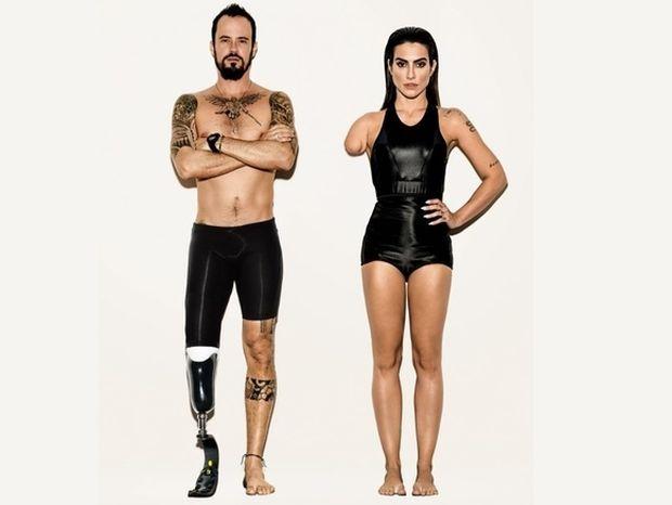 Για τη Vogue Βραζιλίας η αναπηρία είναι ένα τρικ στο photoshop