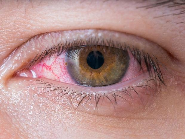 Κοκκίνισμα ματιών: 9 αιτίες & τι μπορείτε να κάνετε (φωτο)