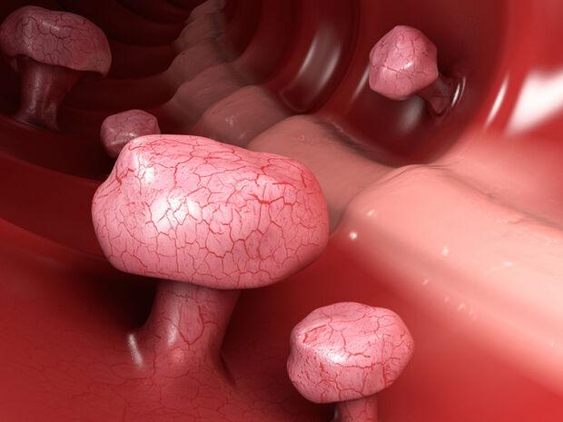 Πολύποδες εντέρου: Γιατί οι πάσχοντες πρέπει να λαμβάνουν ασπιρίνη