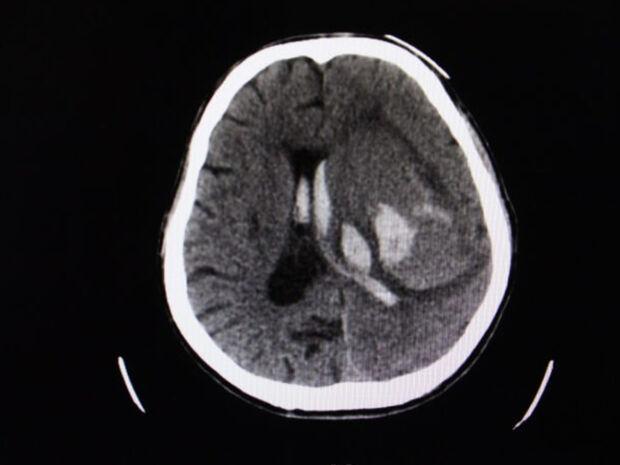 Ανεύρυσμα εγκεφάλου: Ποιους παράγοντες κινδύνου μπορείτε να ελέγξετε & ποιους όχι (εικόνες)