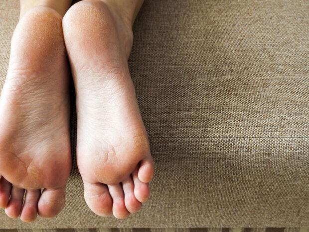 4 δερματικές παθήσεις των ποδιών και τα συμπτώματά τους (εικόνες)