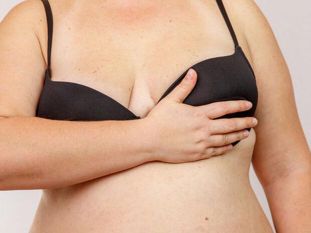 13 μορφές καρκίνου που συνδέονται με τα περιττά κιλά (εικόνες)